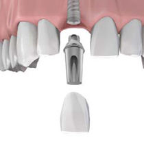 Cosmetic Dentist: Dental Implant - Image credit: www.mis-implants.com