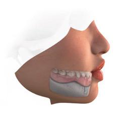 Dental Implant-Retained Denture