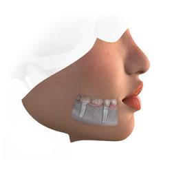 Dental Implant-Supported Bridge