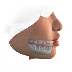 Dental Implant-Supported Denture
