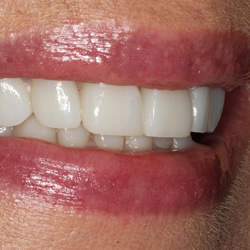 Dental implants by Dr Jurie Steyn Cosmetic Dentist