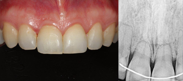 Immediate Placement Dental Implant Before