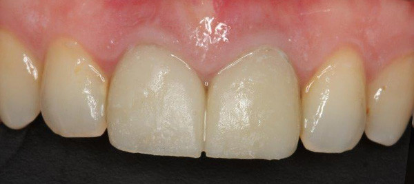 Immediate Placement Dental Implant Result